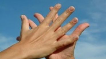 A Freckle On Our Palm! What Does It Means?